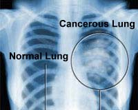 File photo: X-ray image of a normal lung and lung with cancer.